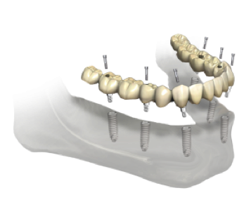 6 implants fixe