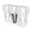 implants dentaires - Dental Danos